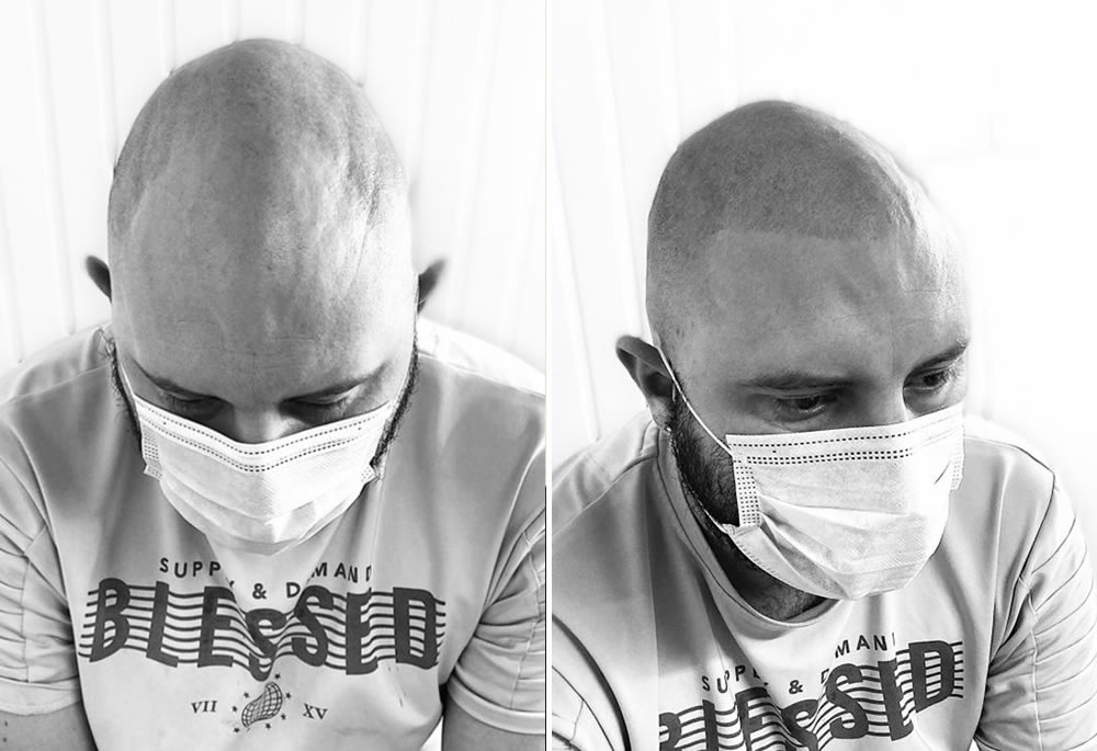 Scalp Micropigmentation Treatment Chatham Medway Kent
